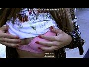 Красивые женщены са сломаной ногой видео